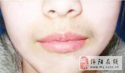 唇毛去除多少钱