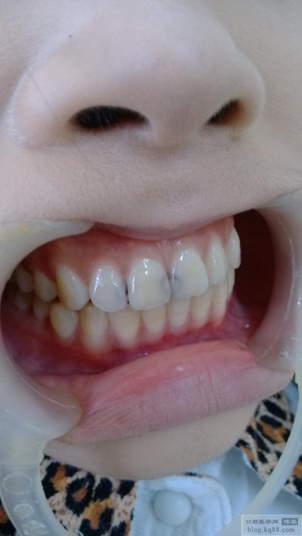 门牙蛀黑了一点,去补牙好不好,补门牙会不会很难看,还有寿命一般大概能有多长?