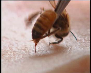 蜂针治疗的临床病证大多是虚实夹杂的病证,如对风湿病,类风湿,该疗法电脑旁苍蝇多图片
